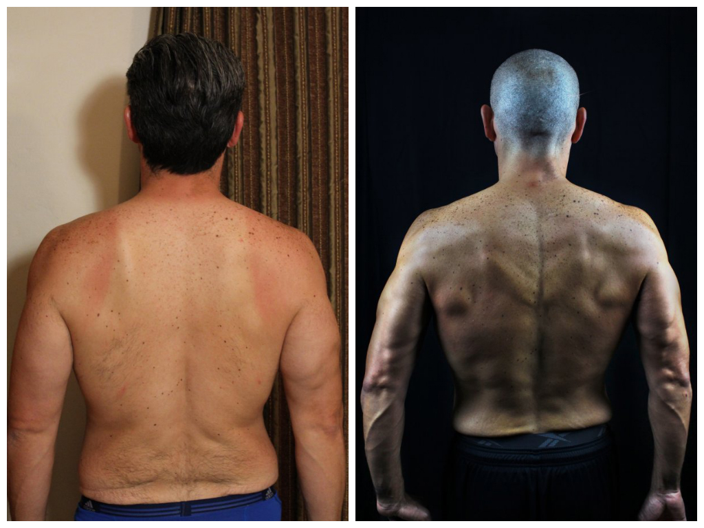 Oscar Ramirez - 10th Place -  Back Before/After Photos