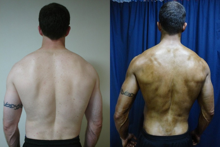Keith Coomes - AT12 4th Place - Back Before/After Photos